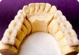 A porcelana da dentadura lig às coroas do metal feitas no laboratório dental de China