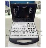 Scanner portatif d'échographie-Doppler de couleur d'ordinateur portatif