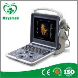 Scanner portatif d'échographie-Doppler de couleur de l'équipement médical 4D de My-A035A