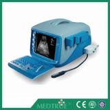 Máquina ultrasónica portable aprobada del sistema de diagnóstico de CE/ISO (MT01006101)