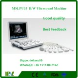 Портативный черный & белый блок развертки Mslpu33A ультразвука