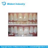 Petites dents dentaires rouges et bleues d'éclairage LED blanchissant