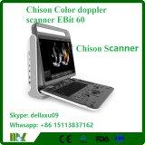 """"""" sistema de Doppler del color de la movilidad del LED 15 Chison Ebit 60 con diseño innovador"""