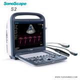 Ultrasonido portable del hospital y móvil médico de Doppler del color de Sonoscape 4D
