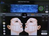 Equipamento da beleza de Hifu do cuidado de pele de Hotsale Hifu