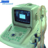 Appareil ultrasonique portable le plus économique Scanner à ultrasons portable