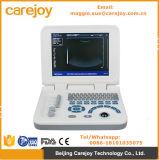 Le ce a certifié le scanner de machine d'ultrason de Digitals de Portable/ordinateur portatif avec la sonde convexe Rus-9000f2-Maggie