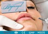 Remplissage cutané injectable d'ha d'acide hyaluronique pour la chirurgie esthétique