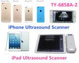 비상사태 임상을%s,  옥외 iPad, iPhone, 인조 인간 전화를 위해 무선 초음파 스캐너를 검열하십시오