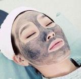 Strumentazione del laser del ND YAG di rimozione di cura e del tatuaggio di pelle