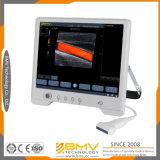Équipement médical d'images d'ultrason de Touchscan Ts30