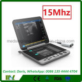 Машина 2017 ультразвука компьтер-книжки новой технологии Mslpu44 Msk Handheld с линейным зондом 6-15MHz