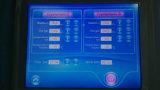 La mejor máquina gorda de congelación del retiro de las celulitis