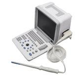 凸のプローブのTransvaginalマイクロ凸の直腸のプローブの任意選択ビデオプリンターMaggieが付いている携帯用超音波のスキャンナーの超音波機械