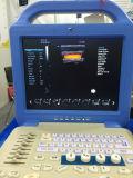 Mslcu34 EL Sistema Ultrasonidoデジタルの第2カラードップラーほとんどの経済的なラップトップの超音波の医療機器