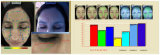 Analyseur de la peau BS-3200