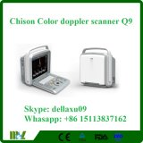 Ultrasonido portable Chison Q9 de Doppler del color con el cm
