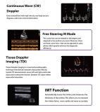 Máquina quente médica do ultra-som de Doppler da cor da venda 3D 4D de Chison Q9 do hospital