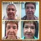 Equipo antienvejecedor de la belleza de Hifu para el cuidado de piel