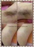 Оборудование IPL красотки лазера пластичных волос портативное с медицинским Ce