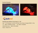 Infrarode Lichte LEIDENE van de Therapie PDT Machine voor Haar Regrow