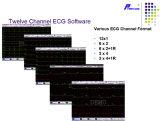"""12.1の"""" LCDのタッチ画面12チャネルECGのElectrocardiograph機械(EM1200)"""
