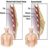 처리되지 않는 남성 성 처리 스테로이드 호르몬 Vard Enafil