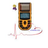 Ce 1-Channel aprovado ECG Handheld EKG (EKG-80A) - Fanny