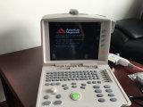 Ce keurde de Volledige Digitale Medische Ultrasone Apparatuur van de Multiparameter goed