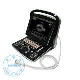 獣医のUltrasound (携帯用) (SonoScan E3EV)