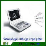 Preiswerte Bs-Ultraschall-Maschine Mslpu26