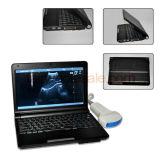 CE/ISO公認の完全なデジタルのラップトップの超音波のスキャンナー(RUS-9000F)