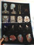 Пленка для медицинской пользы, пленка лазера Dicom рентгеновского снимка