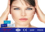 교차 결합된 Hyaluronic 산 피부 충전물 주입 Finelines 2.0ml