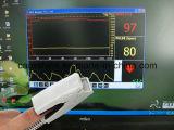 Oxymètre adulte basé sur PC d'impulsion - moniteur SpO2 (RPO-P) - Fanny