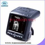 Uskx5200 가득 차있 디지털 B 최빈값 수의 초음파 스캐너