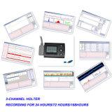 система 3-Channel предварительная ECG миниая Holter (ECGLAB CV-3L) - Fanny