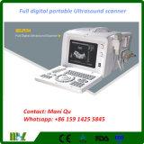 Plein scanner portatif d'ultrason de Digitals Pergnance des meilleures ventes (MSLPU04)