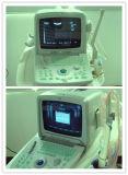 Varredor portátil do ultra-som do bom sistema Pseudo da cor XP do preço