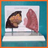 약제 선물을%s 건강과 질병 폐 비교 모형