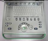 Scanner ultrasonique portatif d'ultrason d'équipement médical de Digitals certifié par ce