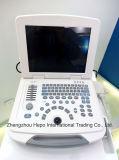 Échographie ordinateur portable largement utilisée avec sonde convexe, linéaire et vagabonde