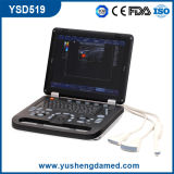 3D 4D Laptop-Ultraschall-Scanner Ysd519 Farben-Doppler-Digital