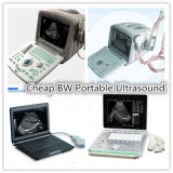 Ultra-som portátil de Doppler da cor do baixo custo 3D 4D para cardíaco vascular abdominal