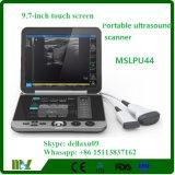 9.7 인치 접촉 스크린 Mslpu44A를 가진 휴대용 B/W 초음파 기계
