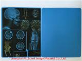 Película médica do azul do raio X da polegada 8*10