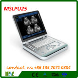 PC Based Mslpu25 Китая 3D Ultrasound Machine Scanner
