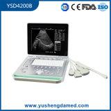 scanner diagnostico medico di ultrasuono del computer portatile della macchina LED dello schermo di cristallo di 3D