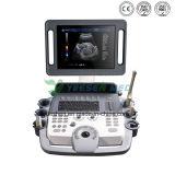 Macchina medica di ultrasuono del carrello di Doppler di colore Ysb-K100 2D 4D