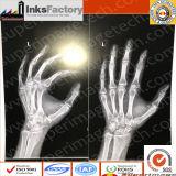 Medica X-Tray Films / Hospital Cr, Dr, MRI, CT, Dsa Films